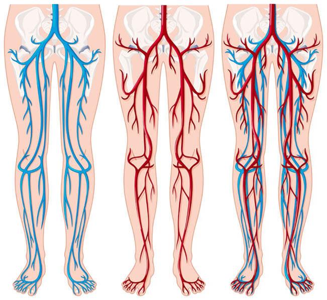 ВАРИКОЗ: Как избавиться от венозной сетки на ногах