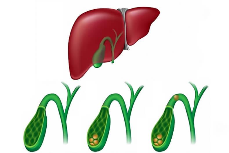 Как лечить желчно-каменную болезнь методами народной медицины