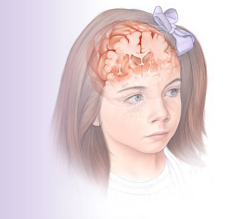 Техника профессора Ауглина для повышения активности мозга для детей и взрослых