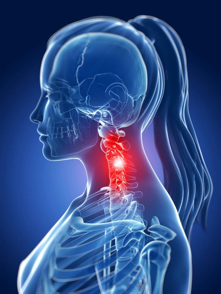 Защемление шейного нерва лечение народными средствами thumbnail