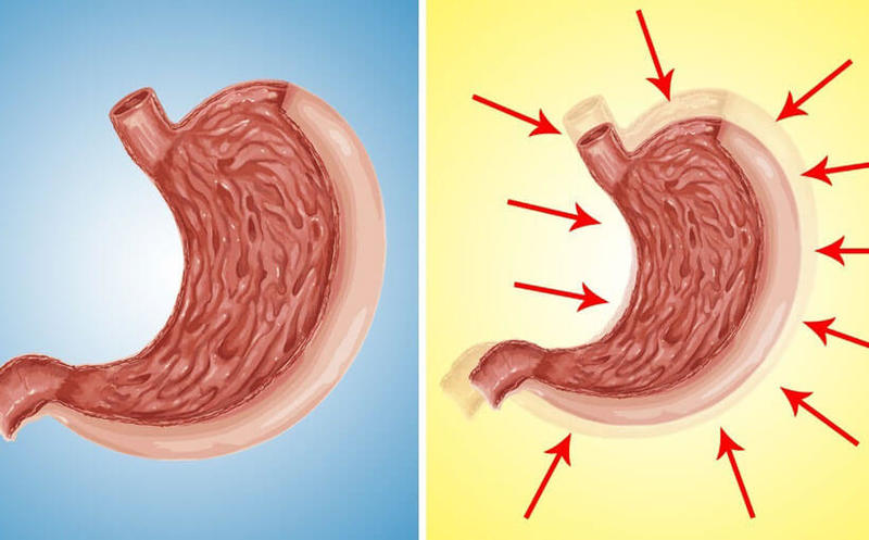 Как уменьшить объем желудка без операции