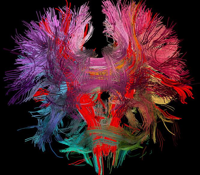 Нейробиолог Ризолатти: Как мысль ставит больного на ноги