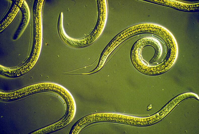 Глисты: Как избавиться от паразитов без таблеток