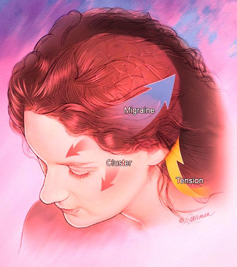 Мигрень: 8 причин ее появления, о которых вы не знали