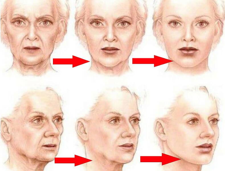 Как «поставить на место» лицо: Простое упражнение для противодействия возрастным изменениям