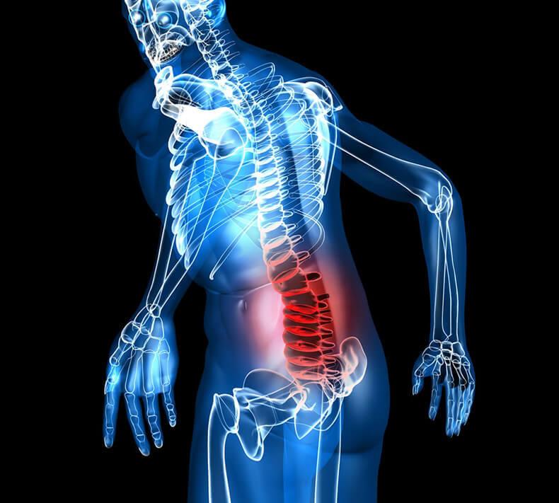 Лечебные упражнения при пояснично-крестцовом остеохондрозе