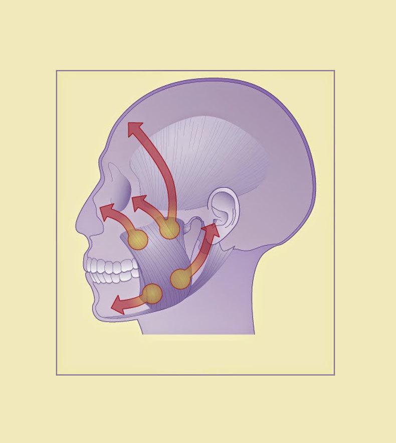 Головная и лицевая боль: Триггерные точки