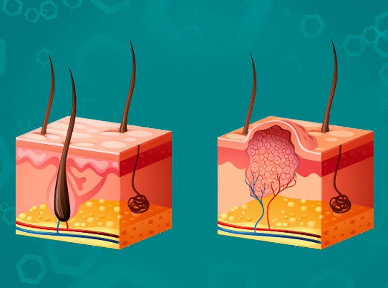 Как избавиться от бородавок с помощью одного ингредиента