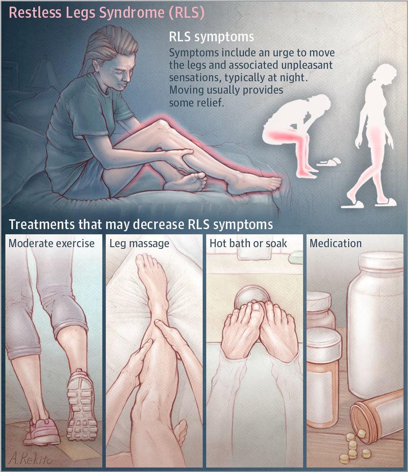 Что делать при синдроме беспокойных ног