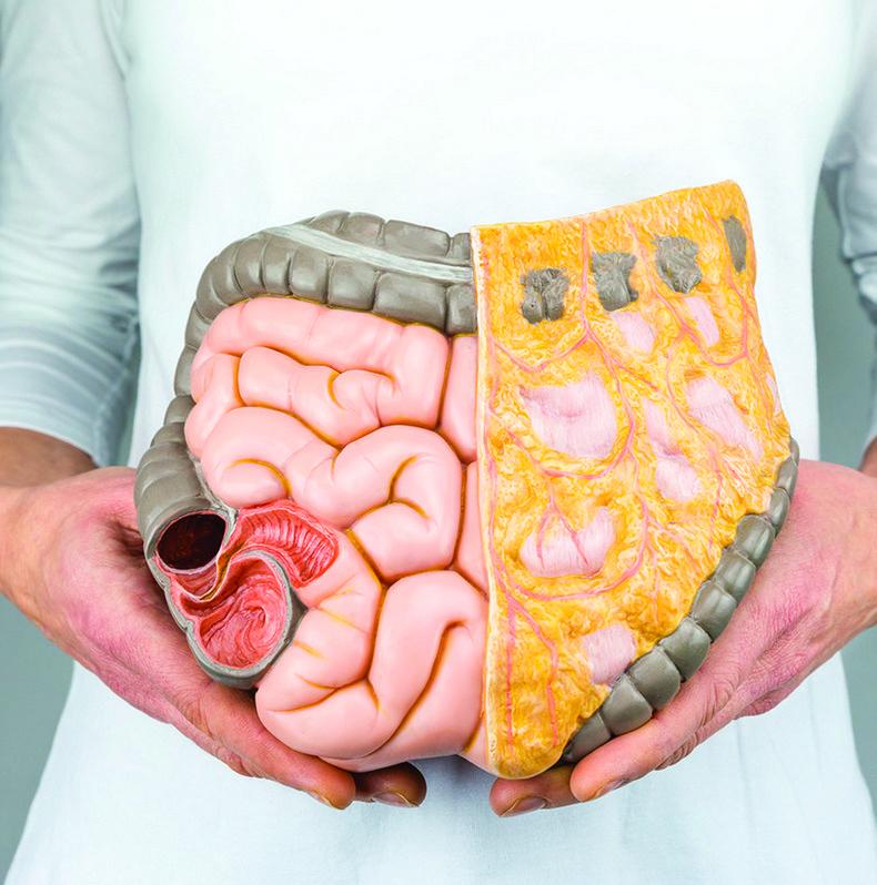 13 шагов для оздоровлениякишечника