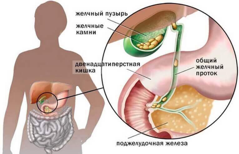 Первые звоночки: Симптомы проблем с желчным пузырем, которые не стоит игнорировать