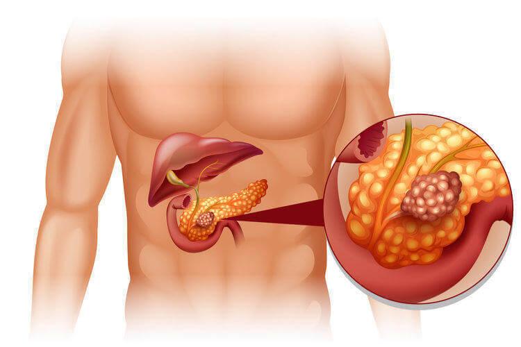 Рак поджелудочной железы: 10 ранних симптомов, которые нельзя игнорировать