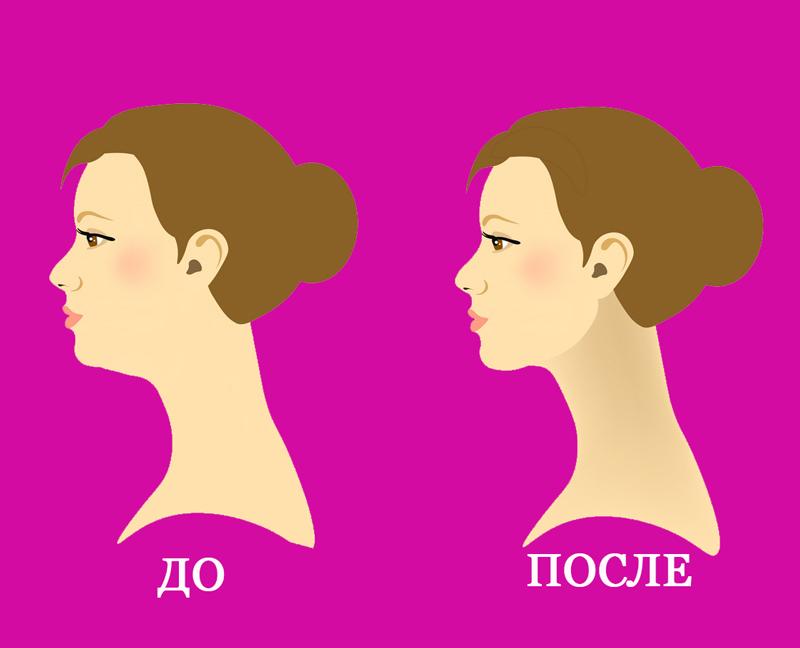 Если отвисает кожа на шее: Лифтинг-упражнение, которое поможет