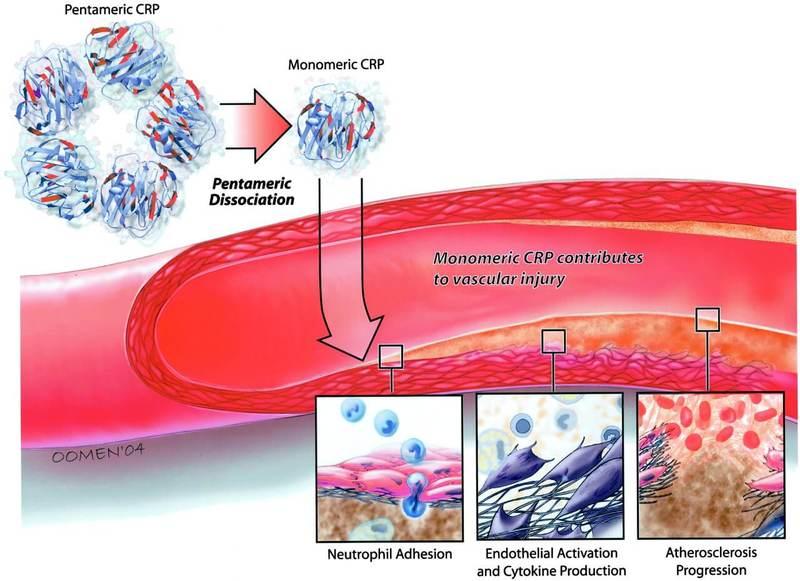 С-реактивный белок (СРБ): все, что вам нужно знать