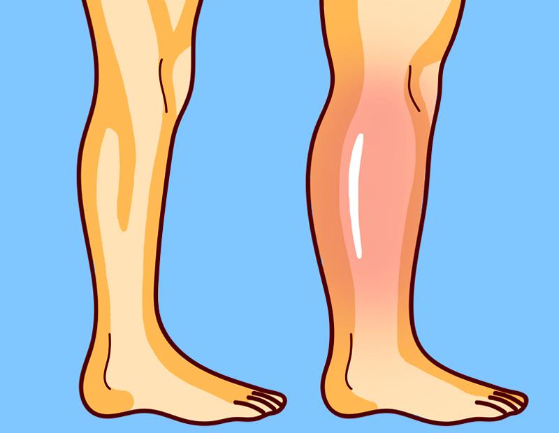 3 простых упражнения от остеопата для снятия отеков ног   Здоровье   Селдон  Новости