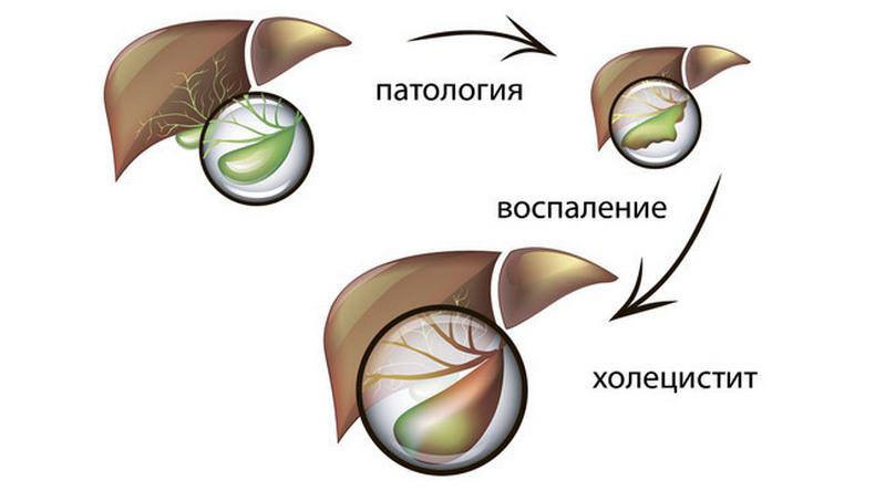 Какую пить минеральную воду при холецистите