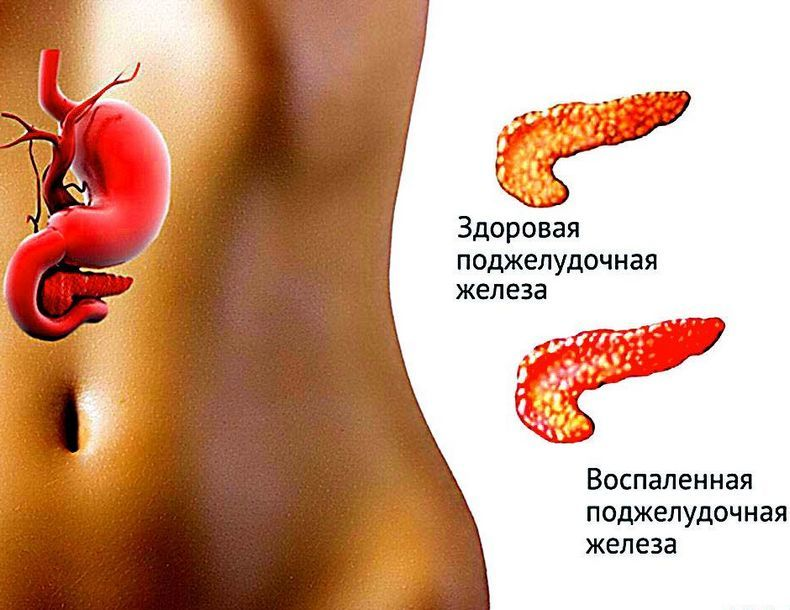 Лечение поджелудочной железы: Лучшие травы и рецепты