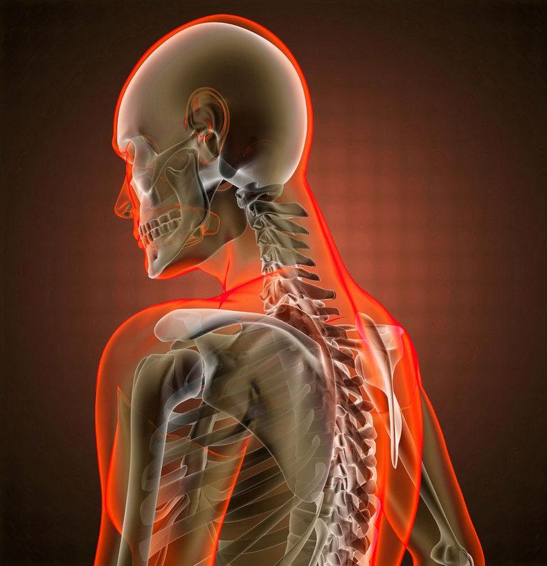 Как не просыпаться разбитым при шейном остеохондрозе