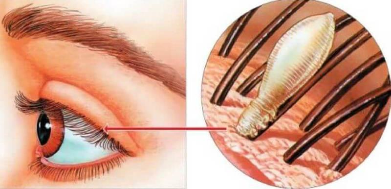 Почему наращивание ресниц может быть опасно для здоровья