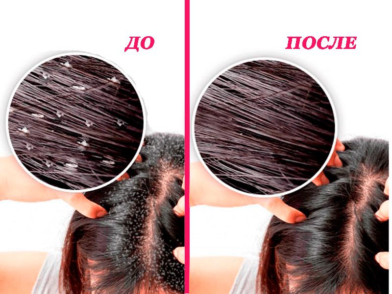 Проблемы с волосами? Добавьте соль в свой шампунь!