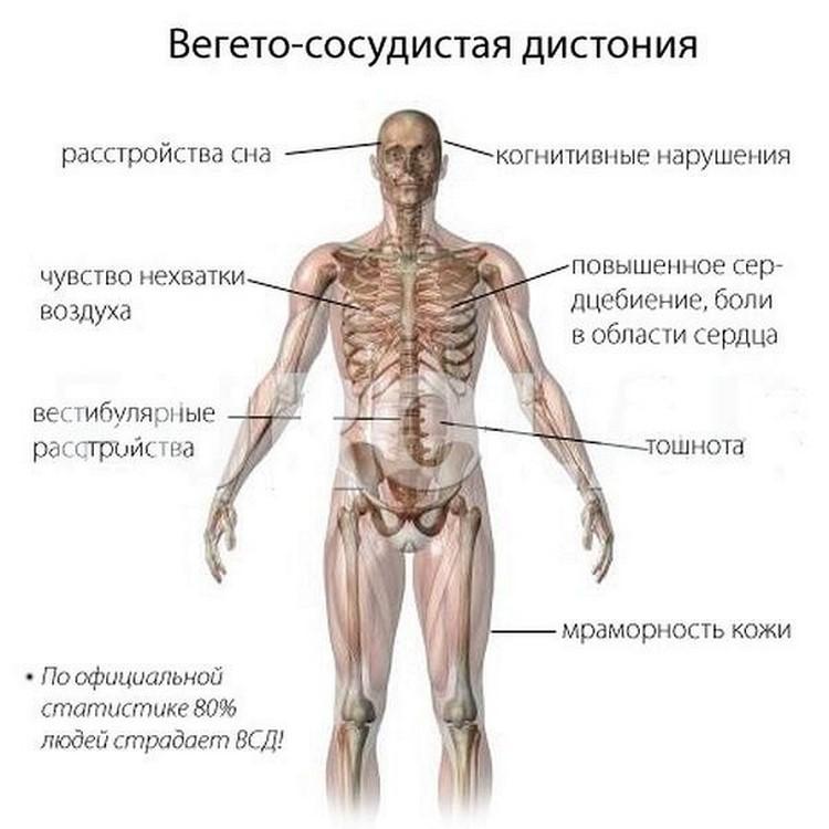 Вегетососудистая дистония мешает жить, а врачи разводят руками