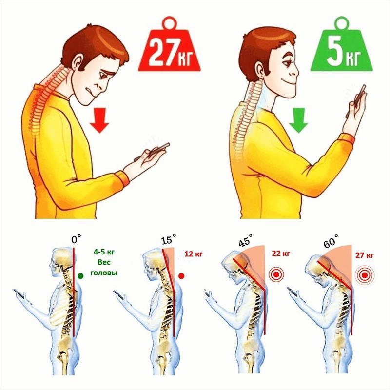 Синдром компьютерной шеи: как смартфон и компьютер становятся причиной болей и старения лица