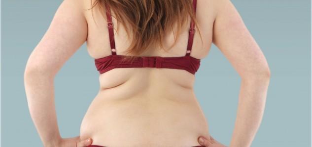 Супер-система избавления от складок на спине и боках