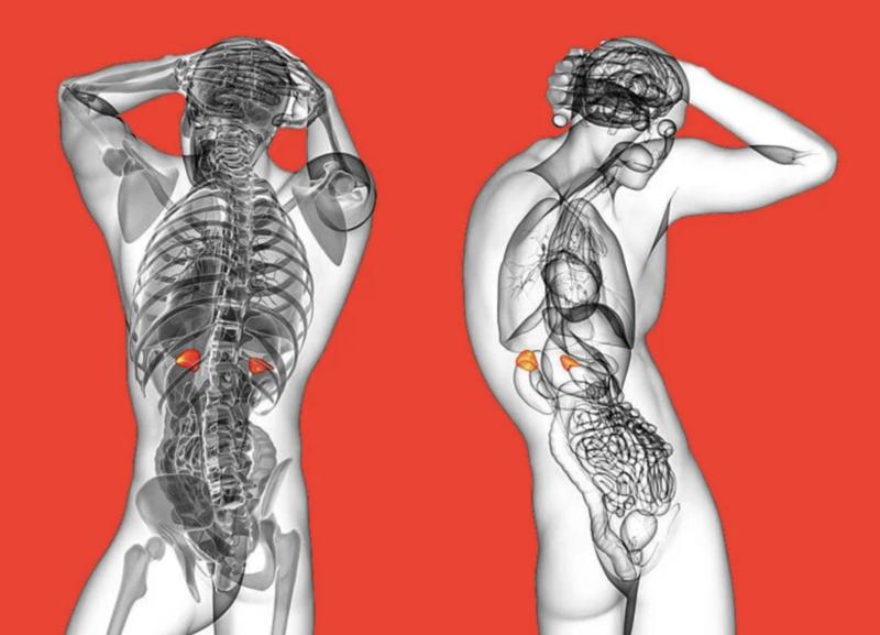 Синдром усталости надпочечников — главная причина гормональных расстройств в 21 веке