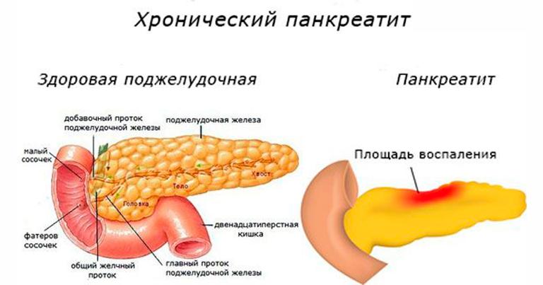 Панкреатит: как питаться на разных стадиях болезни