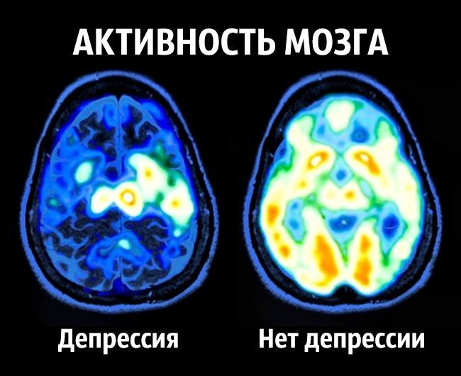 Счастье по науке: как приучить мозг вырабатывать гормоны счастья