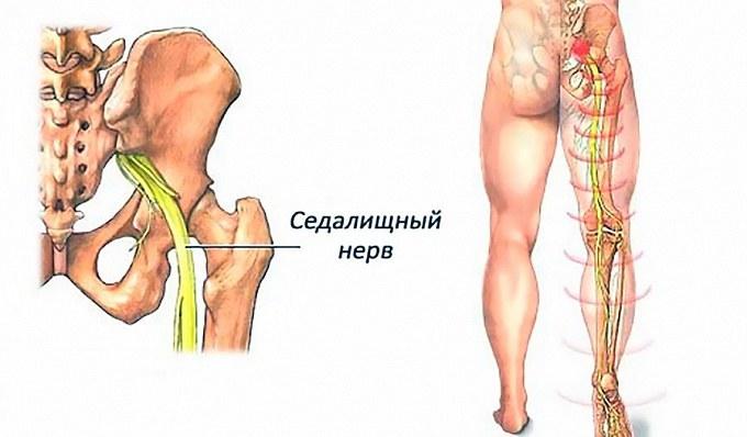 Защемление седалищного нерва: снимем боль за 1 минуту