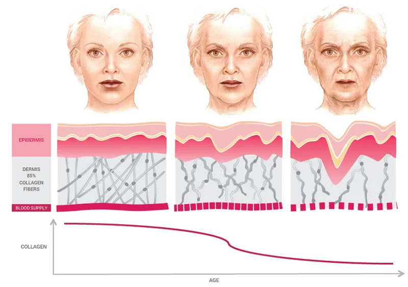 Гликация — причина раннего старения организма