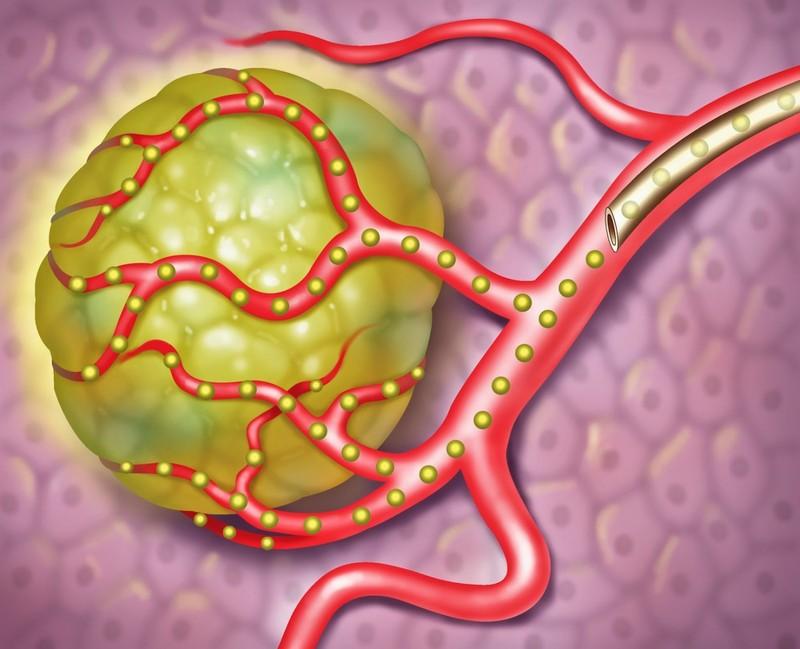 Замедленный метаболизм, давление и еще 10 болезней, которые лечит красный перец