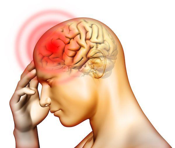 16  простых способов быстро избавиться от головной боли