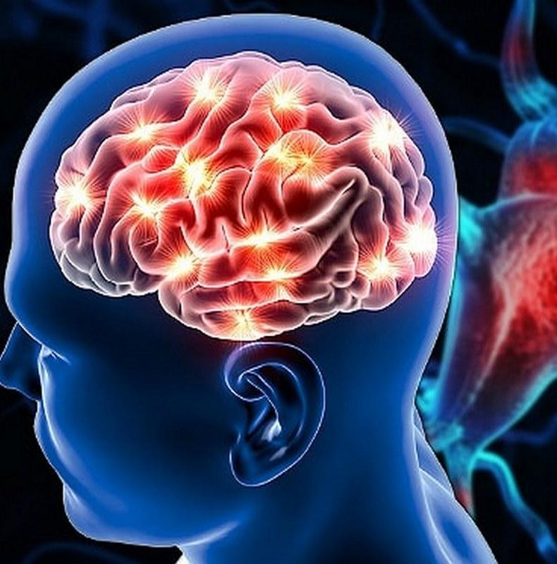 Микроинсульт: как распознать и предотвратить катастрофу мозга