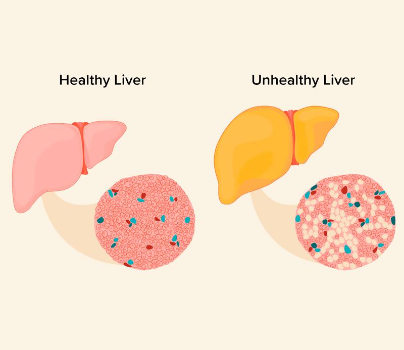 Здоровье печени: 5 веских причин употреблять продукты с серой