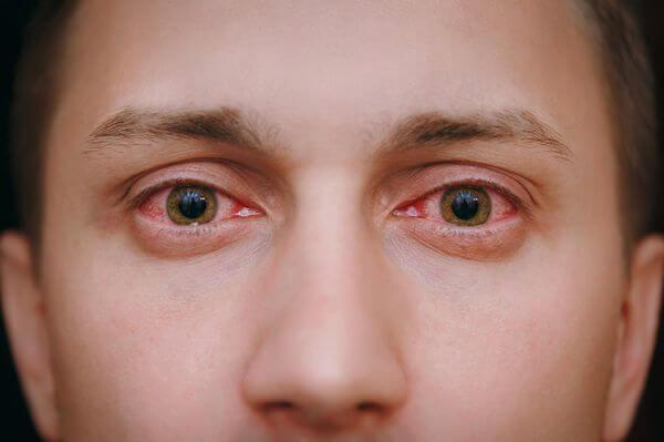Covid-19 может размножаться в глазах неделями