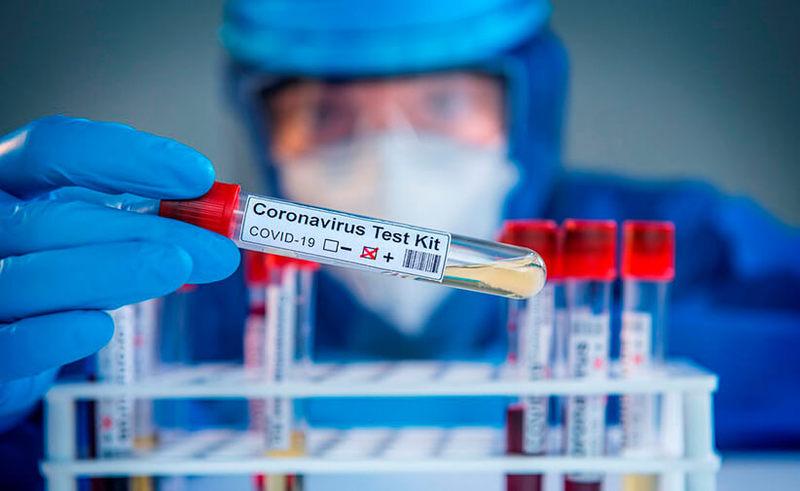 Наборы для анализа на коронавирус загрязнены коронавирусом