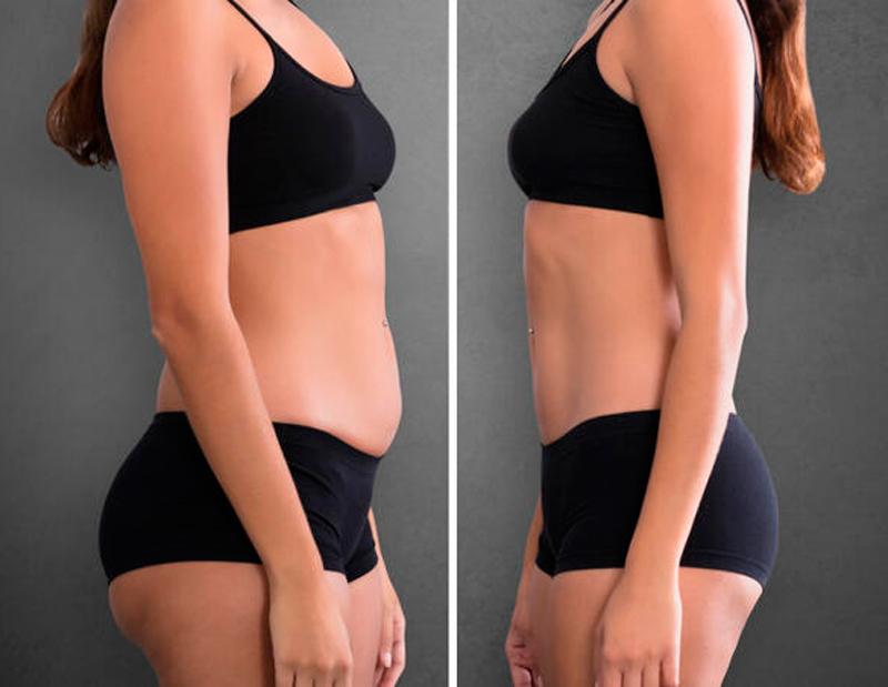 Волшебное средство 3 в 1: исправит осанку, поможет похудеть и стать моложе