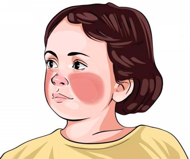 Вирусные заболевания у детей: чек-лист для родителей