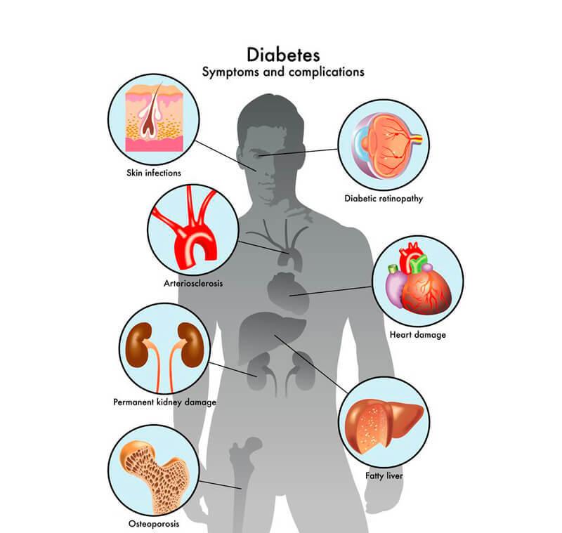 Сахарный диабет: первые симптомы