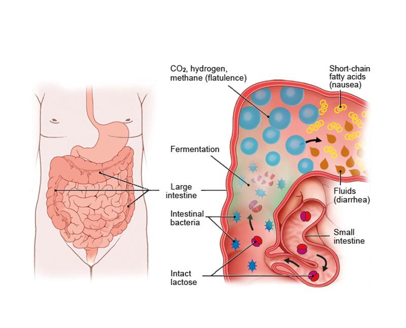 Непереносимость лактозы: 7 симптомов