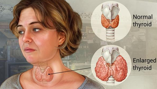 Признаки заболеваний щитовидной железы: когда бить тревогу?