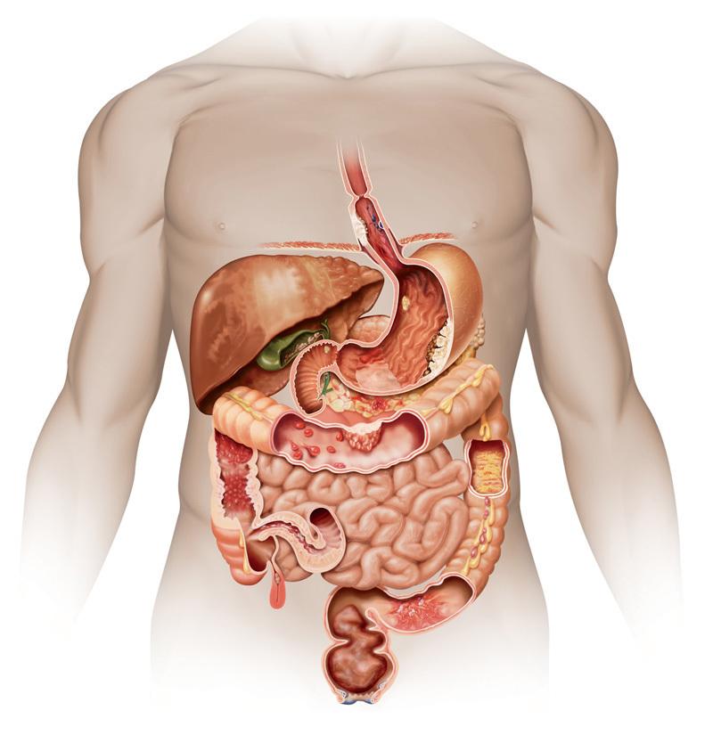 Воспаление в организме: 2 главные причины