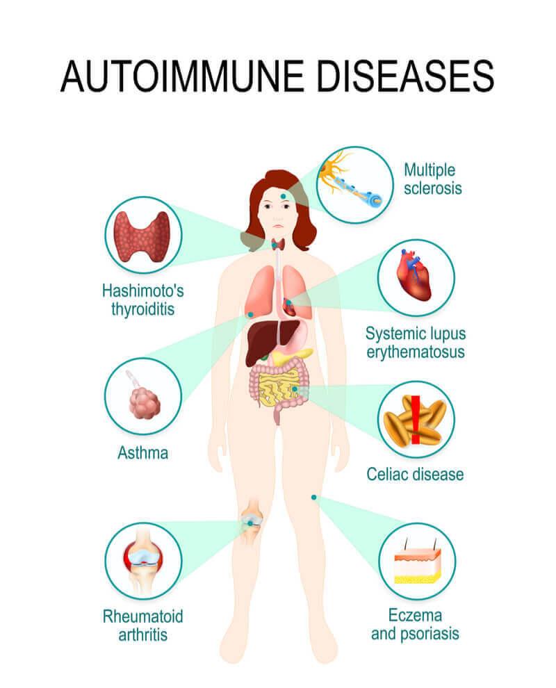 Главная причина аутоиммунных заболеваний