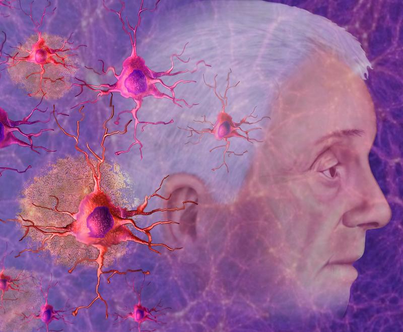 Витамин D и куркумин против болезни Альцгеймера