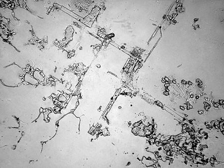 В это трудно поверить: так выглядят слезы под микроскопом
