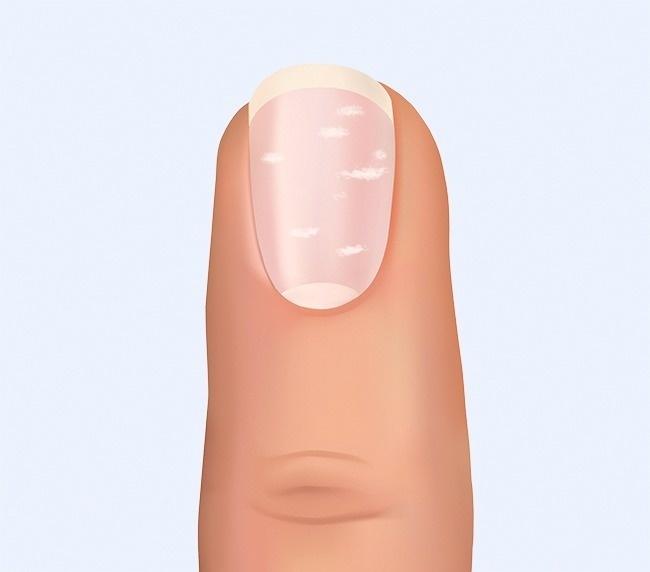 Что ногти могут рассказать о вашем здоровье