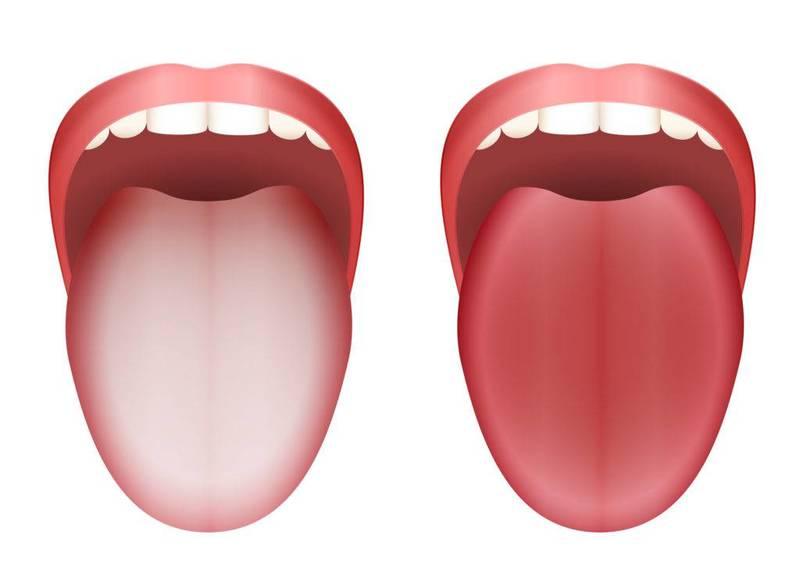 Чистка языка: 5 преимуществ для здоровья