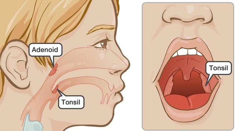 Очищаем миндалины – предотвращаем болезни!